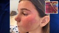 Niña sufre alergia por mascarilla facial que le regalaron en Navidad