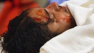 Latigazos y clavos: lo que causó la muerte de Cristo, según un médico