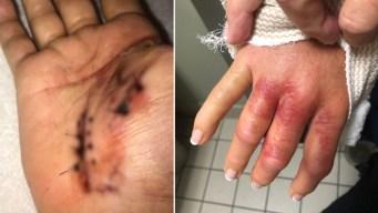 "Bacteria ""comecarne"": una manicura casi la lleva a la muerte"
