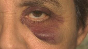 Hispanas golpeadas brutalmente al salir de Burger King
