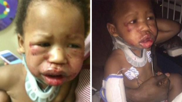 Madre encuentra a su bebé brutalmente golpeado en una guardería