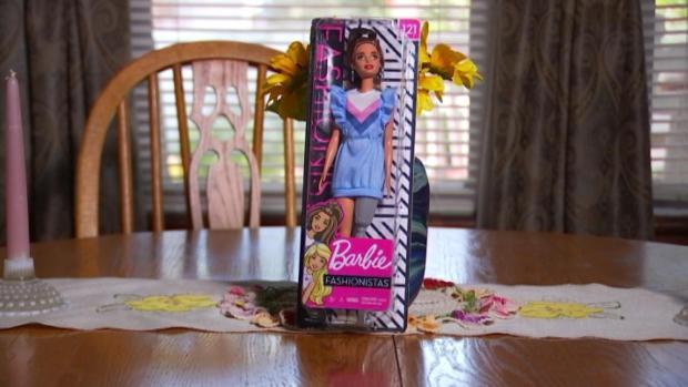 [TLMD - NATL] La viral acción que desencadenó la Barbie con prótesis