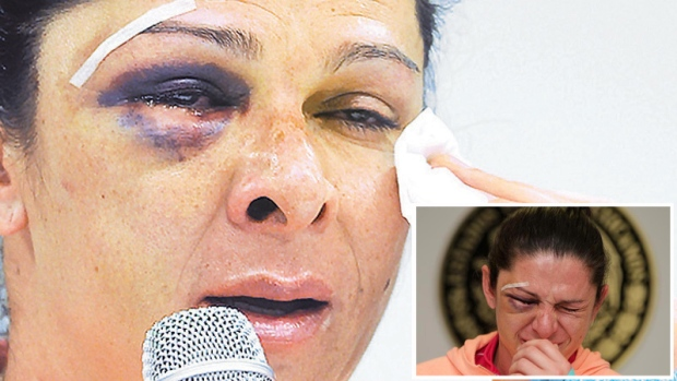 Así quedó el rostro de la senadora Ana Guevara tras golpiza