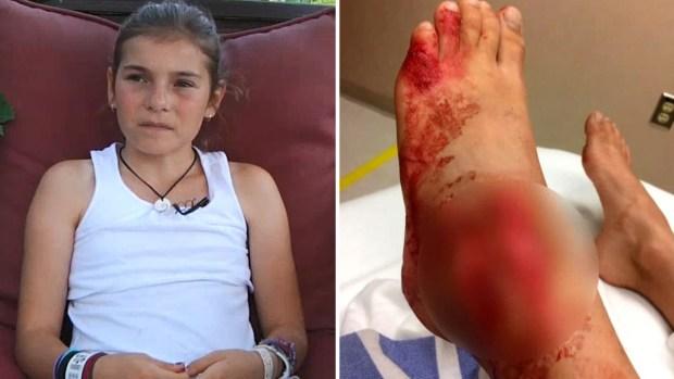 """""""Sentí todo el pie en su boca"""", niña se convierte en carnada y sufre 25 mordidas"""