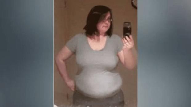 Video: Impactante: pierde 88 lbs en 5 segs