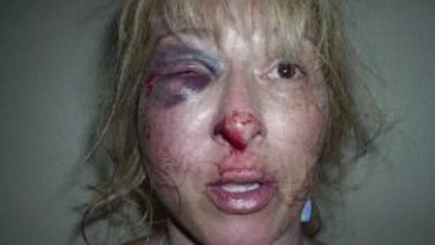 Video: Así quedó tras ser arrestada por DUI