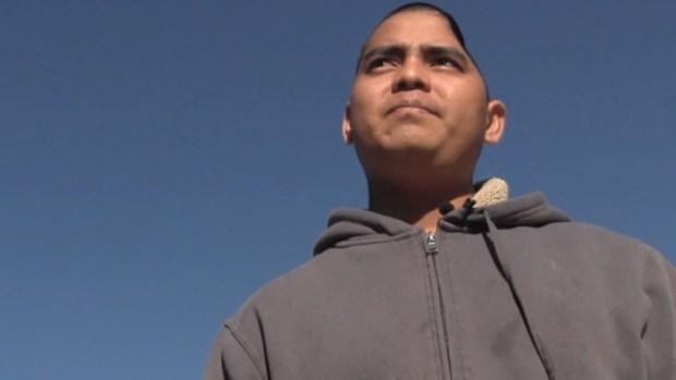 Video: Pierde la mitad del cráneo y lo arrestan