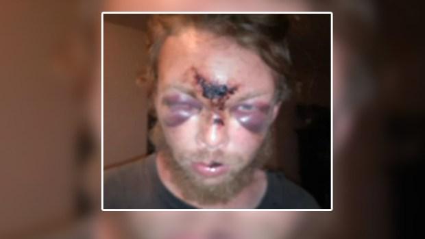 Video: Denuncia uso de fuerza excesiva