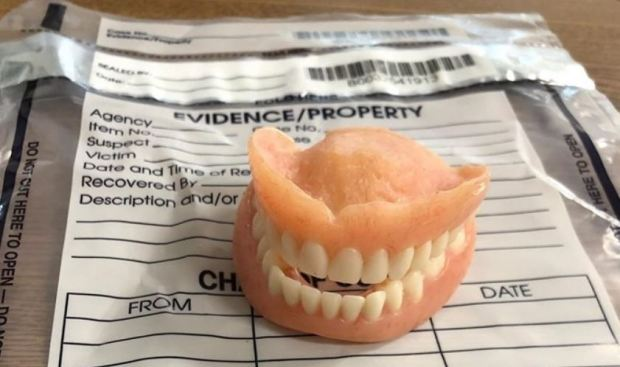 [TLMD - NATL] Viral: resuelto el absurdo robo (y uso) de una dentadura postiza