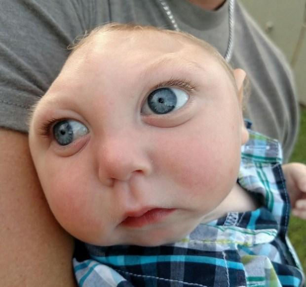 La increíble historia del bebé con medio cráneo