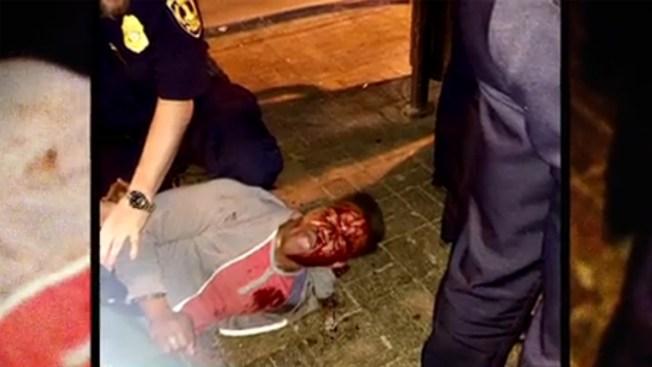Protestan por brutal golpiza a estudiante