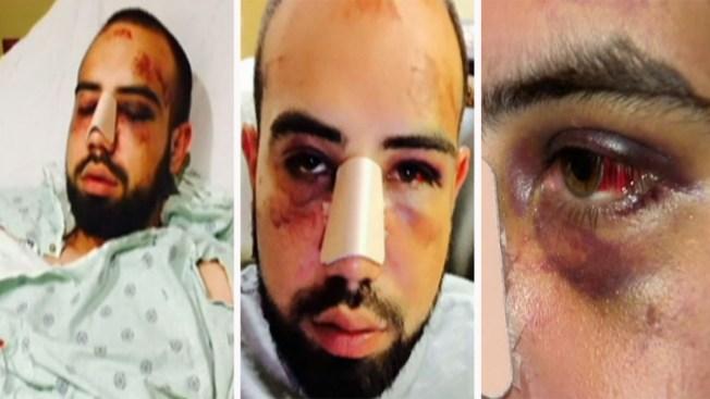 Hispano dice fue víctima de brutalidad policial