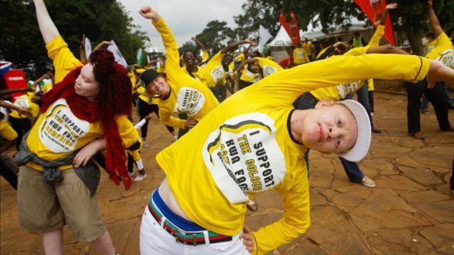 Albinos amenazados de muerte por la brujería