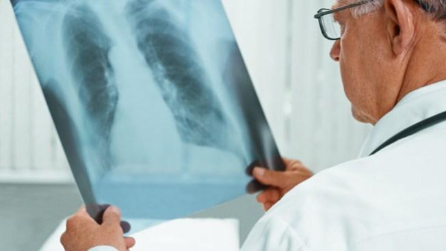 Infante en Summerlin da positivo a tuberculosis