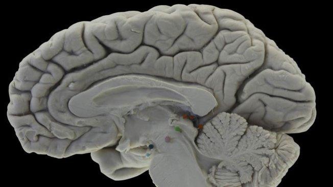 Hallan varios cerebros en las vías del tren de NY