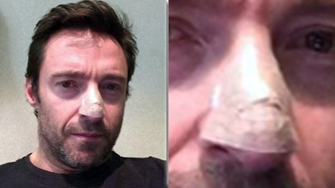 Jackman tratado de cáncer otra vez