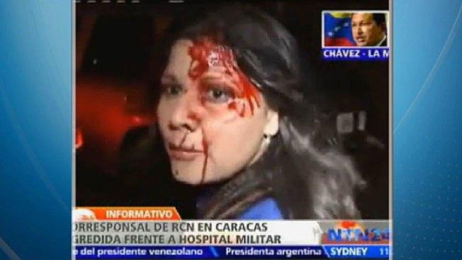 Turbas chavistas atacan a reportera