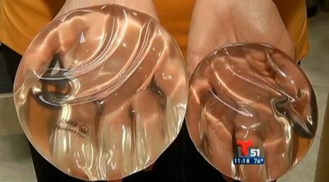 Los implantes de seno y el cáncer